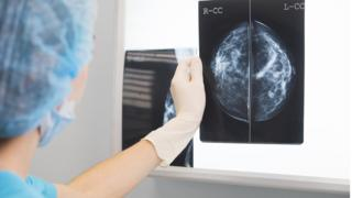 Doctor in surgical clothes holds a mammogram in front of x-ray illuminator